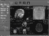 ORS Visual Lite Screenshot